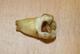 John Lennon Tooth